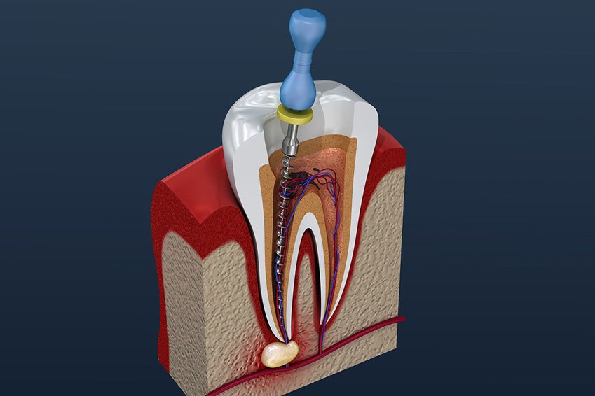 Failed Root Canal Symptoms – How to recognize a failed root canal and what to do