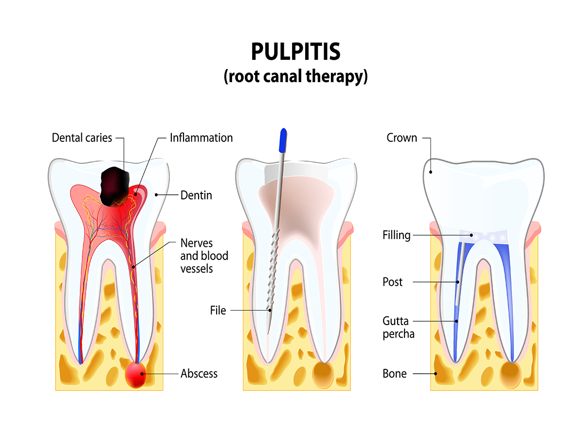 failed root canal