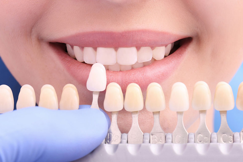 How Much Does it Cost to Get Veneers in 2021