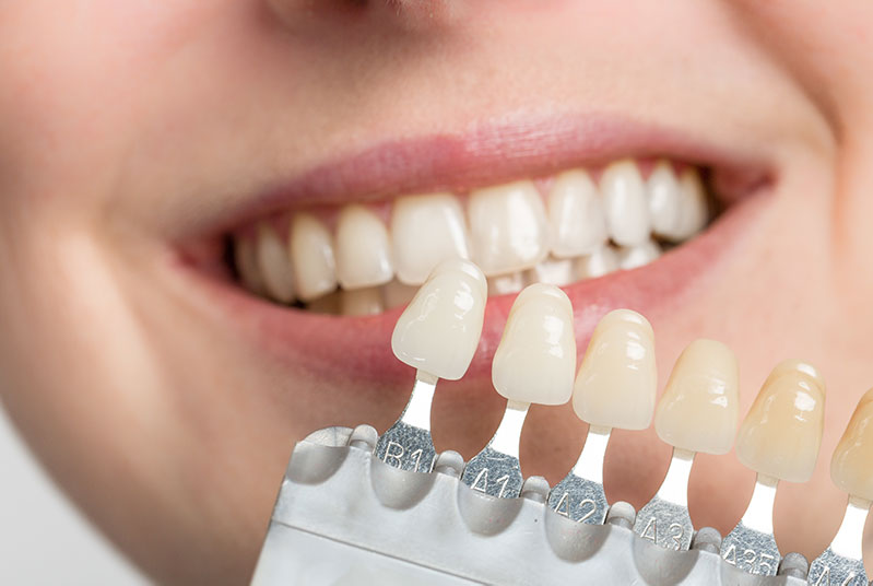 Porcelain Veneers cost Los Angeles