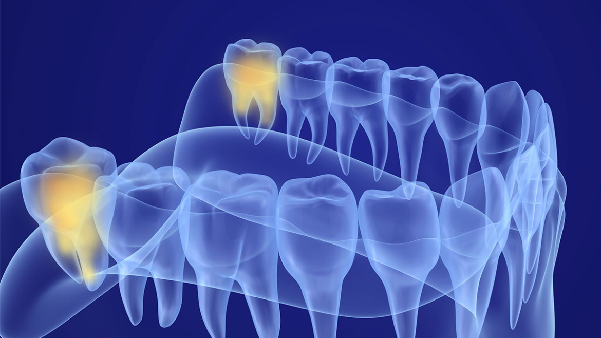 Wisdom Tooth Extraction Cost With Insurance in 2021