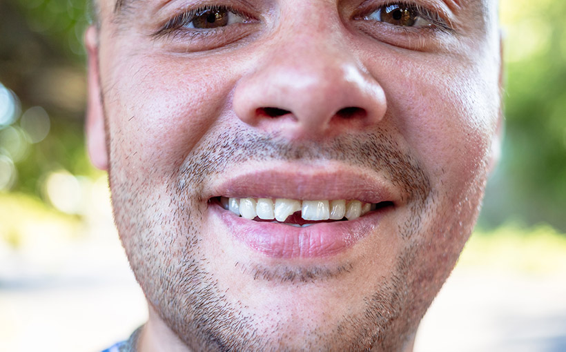 Chip Tooth Treatment Options in Los Angeles, CA
