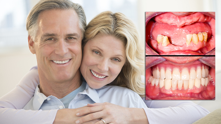 What is the most Affordable Teeth Replacement Option for Missing Teeth