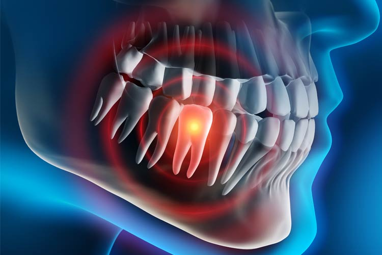 Tooth Extraction Cost in Los Angeles, CA for 2021 – Procedure, Risks and Guidelines