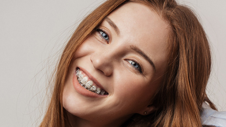 Everything About Spacers (Orthodontic Separators) for Braces