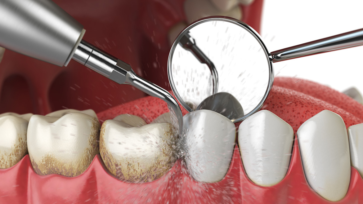 How Much Is A Dental Cleaning And Why Is It Important?