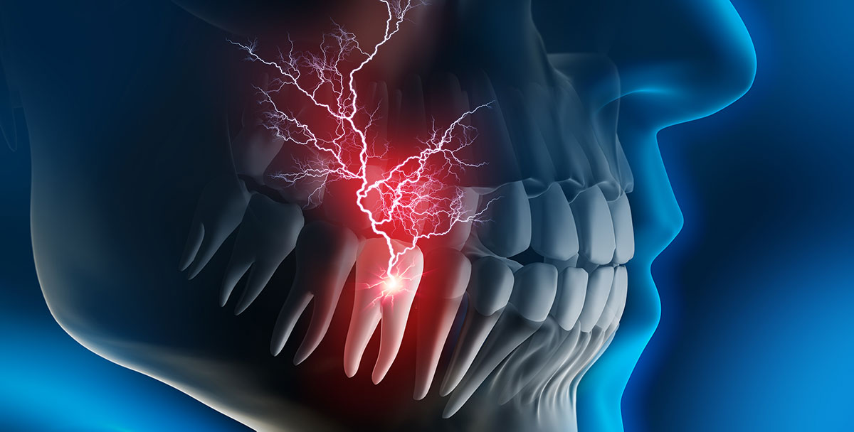 tooth infection signs and symptoms