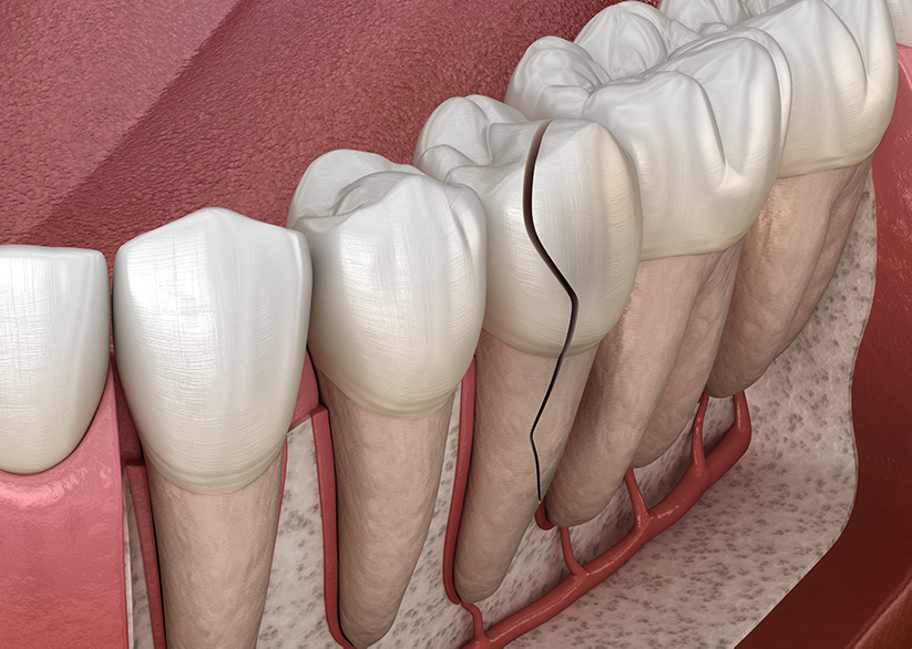 A complete guide to what Cracked Tooth is, Symptoms and treatment options