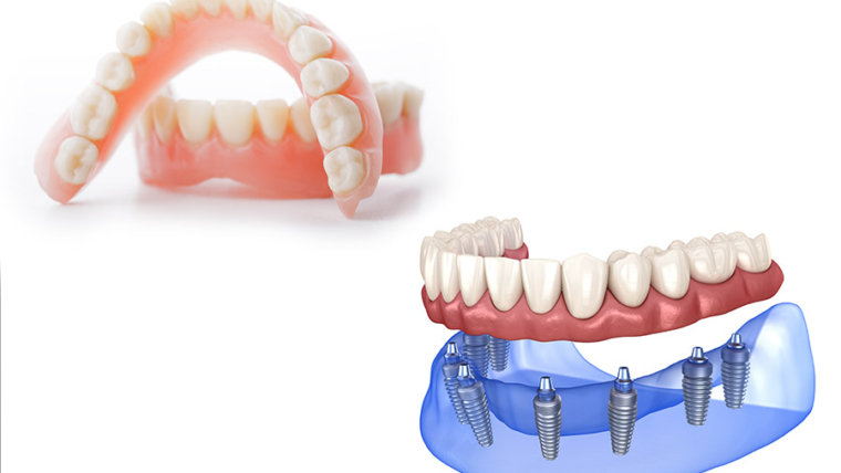 Dentures vs Dental Implants – Which is right for you