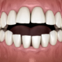 How to Treat Open Bite – A Complete Guide to Open Bite Treatment