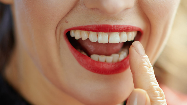 Tooth Bonding Cost in Los Angeles
