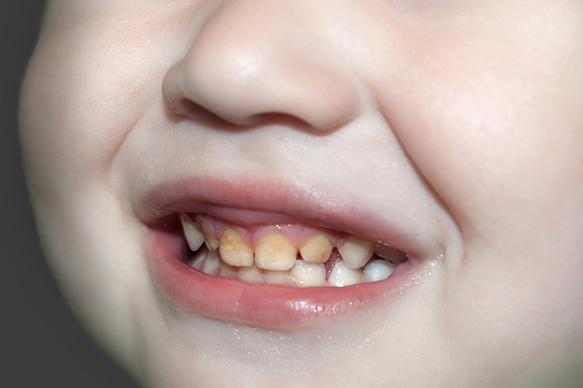What to Do about Your Child's Yellow Teeth