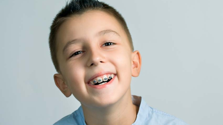 How Much Do Braces Cost With Insurance and Without It?